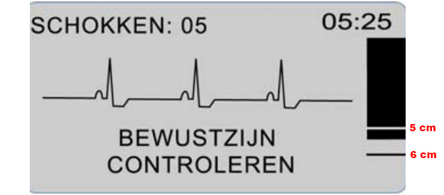 ZOLL AED PLUS rescuer ECG-weergave